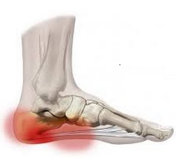 dolor de talones posibles causas