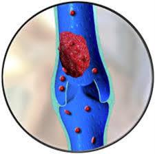 que es una trombosis en un brazo